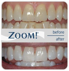 zoom_teeth_whitening_before_and_after